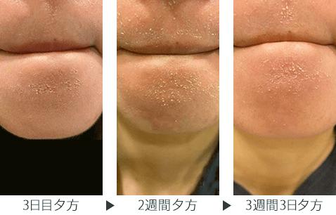 img_column_zoskin_dry-skin