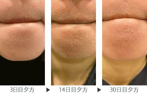 img_column_zoskin_dry-skin_210729